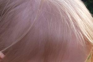 Baby Mit Dunklen Augenbrauen Forum Baby Urbiade