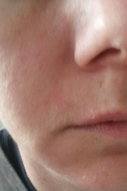 Sehr Trockene Haut Im Gesicht Forum Gesundheit Medizin Urbiade