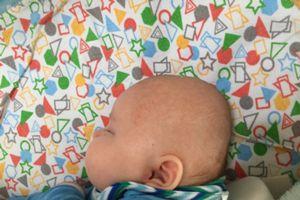 Abgeflachter Hinterkopf Forum Baby Urbia De