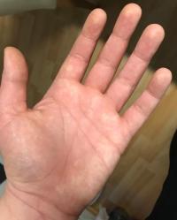 Der hand auf flecken Hyperpigmentierung: braune