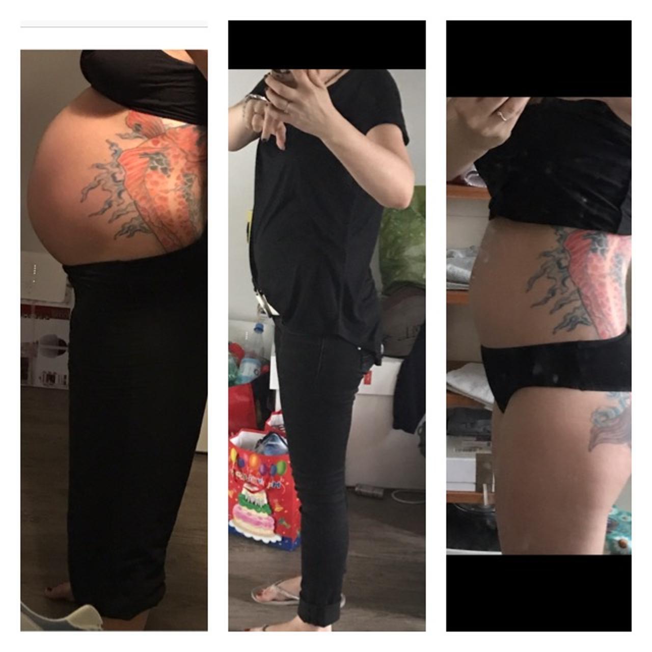 3  Schwangerschaft und schon riesigen Bauch in der 18 ssw