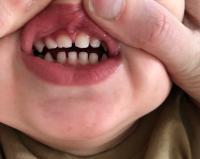 Verfärbt zahn grau Zahn verfärbt